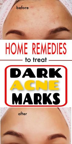 Dark Acne Marks Home Remedies Acne scars are caused mostly due to excessive oil or dead skin layers in the skin. Due to pollution the dirt gets accumulated in the pores of the skin and thus…More Back Acne Treatment, Natural Acne Treatment, Natural Acne Remedies, Herbal Remedies, Health Remedies, Acne Rosacea, Acne And Pimples, Acne Skin, Aloe Vera