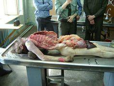 #autopsy #autopsia