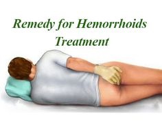 How To Cure Hemorrhoids At Home Fast Home Remedies For Piles - Latest Health Ideas Natural Hemroid Remedies, Natural Home Remedies, Piles Remedies, Home Remedies For Hemorrhoids, Health And Beauty, The Cure