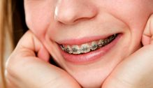 Why Get Braces? Pinned by Togrye Orthodontics. http://www.bracesdoc.com