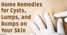 Is Your Lump a Sebaceous Skin Cyst or Something More Serious?