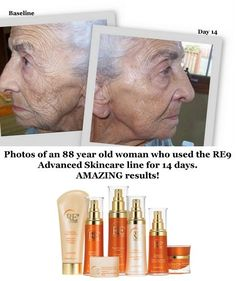 If RE9 makes this much difference in 88 year old skin, how much is it going to make to you?  Let's find out !  #14801935