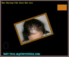 Does Wearing A Hat Cause Hair Loss 153705 - Hair Loss Cure!