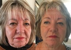 11 Best PDO Thread Lift by Helen Bowes images in 2017