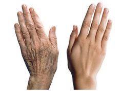 Останови процесс старения на руках! Сила здоровьяи красоты в натуральных рецептах! Больше интересной информации и полезных советов и рецептов на нашем сайте Мы редко когда обращаем на состояние своих рук, но руки одно из таких частей тела, на которые очень пристально обращают внимание мужчины! Вот как защитить свои руки от преждевременного старения: Первое и очень …