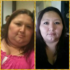 hypothyroidism and weight