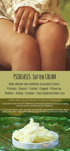 A natural cream that works wonders on your skin!!