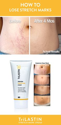 9 Best Our Products Images Trilastin Stretch Mark Cream