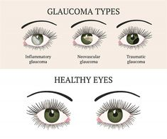 Glaucoma is a very common eye disease that affects the aging population and can lead to blindness. But there are natural ways to lower eye pressure. Glaucoma Symptoms, Common Eye Diseases, Eye Anatomy, Diabetic Retinopathy, Eye Treatment, Natural Eyes, Medical Conditions, Cool Eyes, How To Relieve Stress