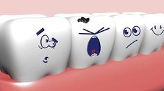 Did you know? Tooth decay is the second most common disease, second only to the common cold.
