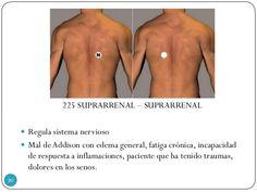225 SUPRARRENAL – SUPRARRENAL  Regula sistema nervioso  Mal deAddison con edema general, fatiga crónica, incapacidad de ...