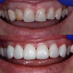 """9dae010478 Darryl Burke DDS, PC on Instagram: """"Happy Monday Smile Makeover. Patient  was unhappy with her front teeth."""