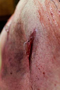 Glass embedded in skin with bruising, car accident victim- spfx makeup by Rhonda Causton(Reel Twisted FX)