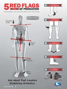 Foot Orthotics Along with Chiropractic Help Low Back Pain - Hometown Family Wellness Center