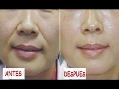Quita las Arrugas de tu boca en 3 Días éxito garantizado al 100% - YouTube