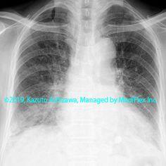 10. 間質性肺炎 症例094:皮膚筋炎に伴う間質性肺炎 胸部単純X線写真,『コンパクトX線アトラスBasic 胸部単純X線写真アトラス vol.1 肺』