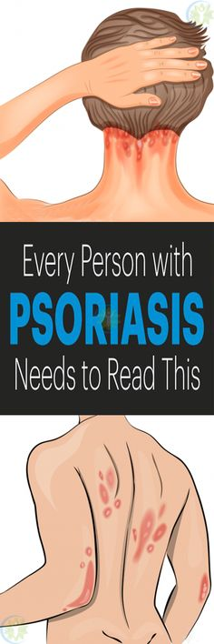 Although psoriasis appears as a skin condition, it is actually an autoimmune disease. Psoriasis Causes, Snoring Solutions, Thyroid Diet, Lose Weight Naturally, Weight Loss, Losing Weight, Autoimmune Disease, Minnie, Health Remedies