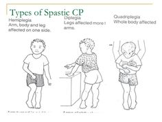 When children with CP demonstrate increased or decreased muscle tone in the upper extremity, arm and hand movements tend to be unstable and motor control is diminished.  Finger and hand movements are often limited or missing.  Children with spasticity frequently demonstrate limited ROM, poor control  and decreased movement efficiency.