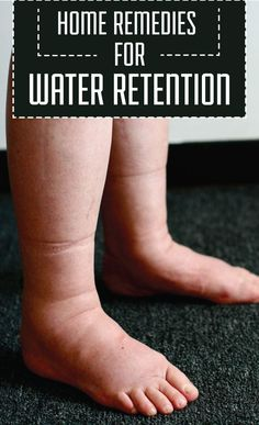 Home Remedies for Water Retention | Remedies Corner