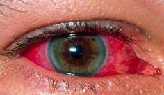 Behçet's disease is a rare and poorly understood condition in which blood vessels and tissues may become inflamed (swollen). Common symptoms include: *genital and mouth ulcers *red, painful eyes and blurred vision *acne-like spots *headaches *painful, stiff and swollen joints; in severe cases, vision loss and strokes. Behçet's disease tends to be more common in the Far East, the Middle East and Mediterranean countries ie Turkey, Iran and Israel.  Medicines such as () treat symptoms, but no…