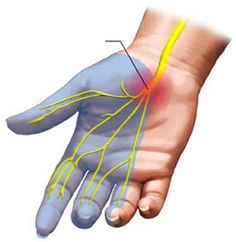 This is a great diagram that shows the Median Nerve Pathway as it passes through the Carpal Tunnel and the area in blue which is usually affected when the Median Nerve is pinched causing Carpal Tunnel Symptoms from Carpal Tunnel Syndrome.
