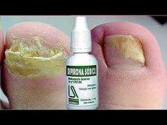 DIPIRONA Na UNHA Acaba Com FUNGOS e MICOSE - YouTube Nail Treatment, Thick Hair Problems, Yellow Toe Nails, Toenail Fungus Remedies, Best Acne Products, Pedicure At Home, Natural Beauty Remedies, Neck Designs For Suits, Home Remedies