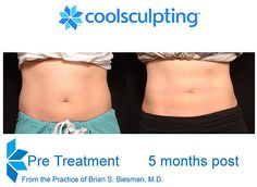 Brian Biesman, M. – The Practice of Brian S. Biesman, M. Brian Biesman, M. Cool Sculpting Before & After 5 months Cool Sculpting, Cosmetic Procedures, Stress Less, Body Wraps, In Cosmetics, Healthy Lifestyle Tips, Liposuction, Best Self