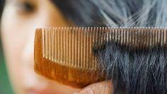 El Arte Sano del Bienestar: Cómo enfrentar la caída de cabello de manera natur...