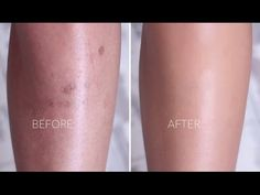 Cover Scarring & Pigmentation with Makeup Scar Makeup, Leg Makeup, Natural Makeup, Natural Hair, Leg Scars, Ben Nye Luxury Powder, Dark Spots On Legs, Diy Foundation, Makeup Youtube