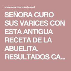 SEÑORA CURO SUS VARICES CON ESTA ANTIGUA RECETA DE LA ABUELITA. RESULTADOS CASI INMEDIATOS!!! – Mejor Con Remedios