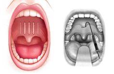 Per aumentare la rigidità del palato molle, spesso causa di Roncopatia e Apnee del Sonno, vi sono metodi che non richiedono la rimozione di alcun tessuto.