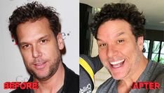 Dane Cook seems to have Botox injctions and chin job. If he had plastic surgery it just worked well for him. He dismissed plastic surgery rumors Botched Plastic Surgery, Celebrity Plastic Surgery, Dane Cook, Cosmetic Procedures, Celebrity Photos, Celebrities, Cooking, California, Wallpaper