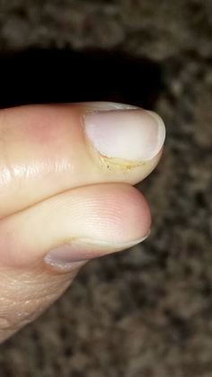 One Seriously Beautiful Life: Ingrown Nail Treatment