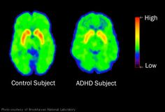 30%-70% of kids with ADHD continue having symptoms when they grow up. People with ADHD have an imbalance of neurotransmitter activity in areas of the brain that control attention. In adults, the inability to stay focused can derail careers, ambitions, and relationships. Many adults don't realize they have the disorder, leaving them mystified about why their goals always seem to slip out of reach.