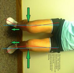 exercises to alleviate shin splints Hip Stretches, Stretching, Exercises, Running Techniques, Muscle Imbalance, Shin Splints, Sports Medicine, Fit Board Workouts, Yoga