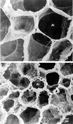 Scanning electron microscope view of lung alveoli, magnified × 750, showing the way in which their shape is retained as their size alters with changes in lung volume.