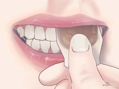 Imagem intitulada Treat Gum Disease With Home Made Remedies Step 3