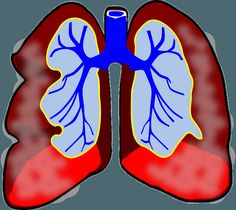 Alternative Medicine for Asthma - http://wellnesscoachingforlife.com/natural-remedies/alternative-medicine-for-asthma/  #health
