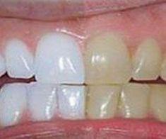 Unbelievable Tips: He mixed 2 ingredients and passed .- Dicas Inacreditáveis: Ele misturou 2 ingredientes e passou nos dentes. O… Unbelievable Tips: He mixed 2 ingredients and brushed his teeth. Coconut Oil For Teeth, Coconut Oil Pulling, Coconut Oil Uses, Gum Health, Oral Health, Health Tips, Dental Health, Teeth Health, Healthy Teeth