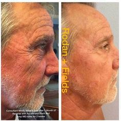 Not just for the ladies!! If you have skin weve got you covered!! Mindy just posted her dad's results... This is MY DAD Tom after using the Reverse Regimen for just over a month. He started using the AMP MD Roller at night about 2 weeks ago as well. Ill be hitting him up with some eye cream when they return from Florida this week!! Pretty good for an old timer thats had numerous cancerous & precancerous spots removed from his face & body! #hunkinstyle #aginginREVERSE by lisahunkin