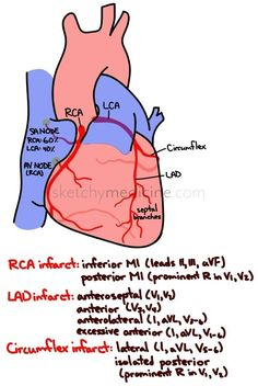Coronary artery supply and corresponding MIs Sketchy Medicine Nursing Tips, Nursing Notes, Nursing Programs, Cath Lab Nurse, Critical Care Nursing, Cardiac Nursing, Emergency Medicine, Medical Information, Nurse Life