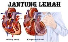Lemah Jantung - Ciri - Ciri Jantung Lemah