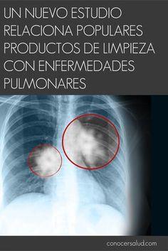 Un nuevo estudio relaciona populares productos de limpieza con enfermedades pulmonares #salud