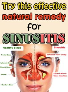 Get rid of sinusitis with this natural homemade remedy.