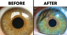 7 Things That Can Change Your Eye Color - İnteresting Hair İdeas Eye Facts, Eye Color Facts, Green Eyes Facts, Eye Color Chart, Change Your Eye Color, Beauty Tricks, Hazel Eyes, Tips Belleza, Green Eyes