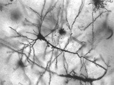 Restrição calórica pode ser benéfica para o cérebro diz estudo