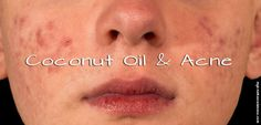 Coconut Oil and Acne - Hybrid Rasta Mama (includes a recipes for an acne face mask, comprised of tomato, lemon juice, and oatmeal)