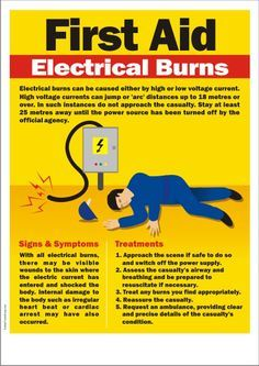 First Aid Tips for Electrical Burns These tips are based on the first aid procedures, Employees should know first aid in case an emergency arisese either in the workplace or out. Know the basics with these first aid safety tips. Emergency First Aid, Emergency Medicine, Survival Prepping, Emergency Preparedness, Survival Skills, Emergency Kits, Survival Gear, First Aid Poster, First Aid Procedures