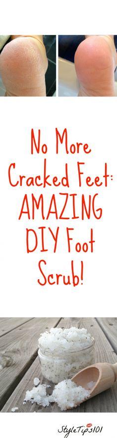 DIY Tea Tree Mint Foot Scrub