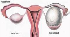 Before taking medication or doing surgery, try natural alternatives to curing ovarian cysts. They can reduce your cyst and prevent it from coming back.